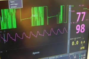 6.7a_Storing elektrochirurgie op ECG